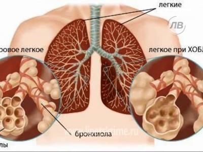 Болезни органов дыхания и их профилактика